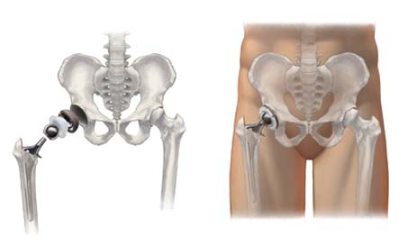 best hip replacement surgeons