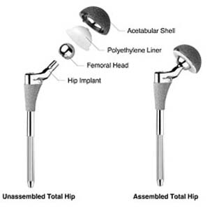 hip replacement surgery procedure