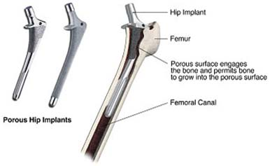 best hip replacement hospital in India