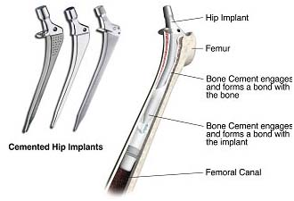 India surgery hip replacement