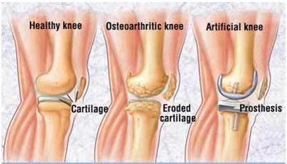 India Cost Knee Replacement Surgery