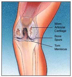 India Cost Total Knee Replacement, Total Knee Replacement Surgery, India TKR