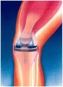 India Surgery Total Knee Replacement, India Cost Total Knee Replacement, Surgery Activities