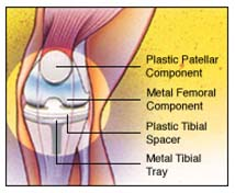 India Surgery Total Knee Replacement, India TKR, Surgery Activities