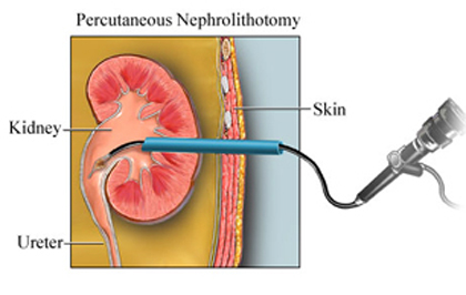 India Surgery Percutaneous Nephrolithotomy, Cost Nephrolithotomy Mumbai, Percutaneous Nephrolithotomy Surgery