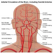 Surgery India Atherosclerotic Carotid Artery, India Cost Carotid Artery