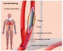 Surgery India Atherosclerotic Carotid Artery, Atherosclerotic Disease Of The Carotid Artery Treatment