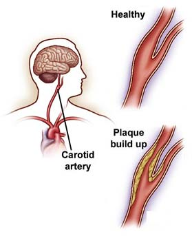 India Cost Carotid Endarterectomy, Carotid Endarterectomy Surgery, India Cost Carotid Endarterectomy Surgery