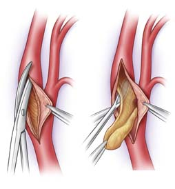 Surgery India Carotid Endarterectomy, India Cost Carotid Endarterectomy Surgery