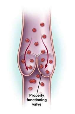 Surgery India Chronic Venous Insufficiency, Cost Venous Insufficiency, Chronic Venous Insufficiency Treatment