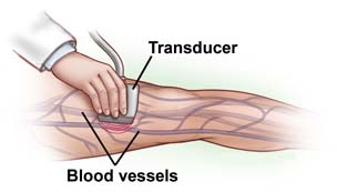 Surgery India Deep Vein Thrombosis Treatment, Cost Deep Vein Thrombosis