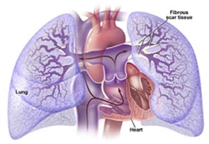 India Cost Pulmonary, Pulmonary Endarterectomy Surgery, India Pulmonary Vascular Disease