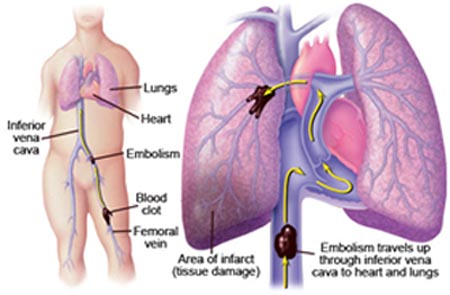 India Surgery Pulmonary Endarterectomy Surgery, India Cost Pulmonary