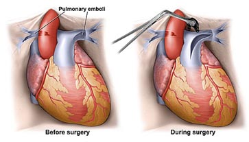 India Surgery Pulmonary Endarterectomy Surgery, Pulmonary Endarterectomy, India Pulmonary Vascular Disease
