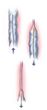 India Cost Vein Ablation Surgery, Vein Ablation Surgery, India Vein Ablation Surgeon Hospital