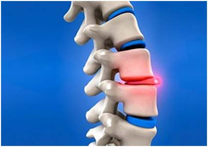 info on herniated disc, disc replacement surgery india, herniated disc removal treatment