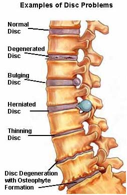 Low Cost Lumbar Laminectomy Surgery India, Bone Spurs India, Side Effects India