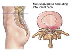 Spinal Stenosis Surgery, Cervical Stenosis, Cervical Stenosis Surgery, Laminectomy, Lumbar Spinal Stenosis