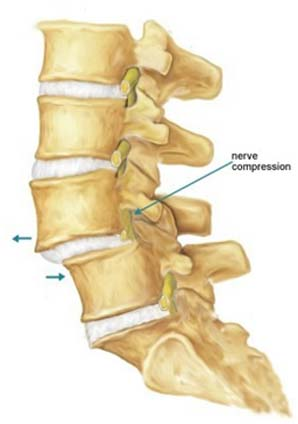 Spondylolisthesis Diagnosis, Spondy, Lower Back Pain, India Hospital Tour, Degenerative Spondylolisthesis