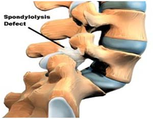 Spondylosis,  Surgery For Cervical Spondylosis, Spondylosis Treatment India, Treatment Of Spondylosis, Cervical Spondylosis