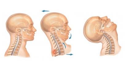 Whiplash Surgery India, Whiplash, Surgery, Discectomy, Fusion, Recovery