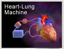 Heart Transplant Surgery India offers info on Cost Heart Transplant India, Best Price India Surgery Heart Transplant India