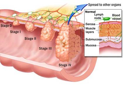 Best option on detection and prevention of colorectal cancer